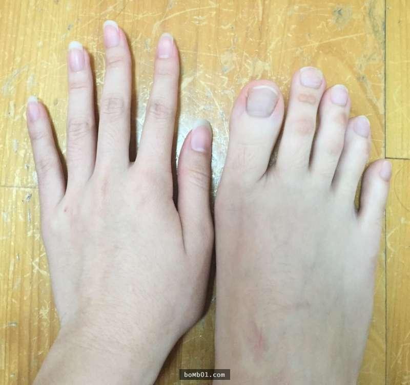 La ragazza con le dita dei piedi pi&